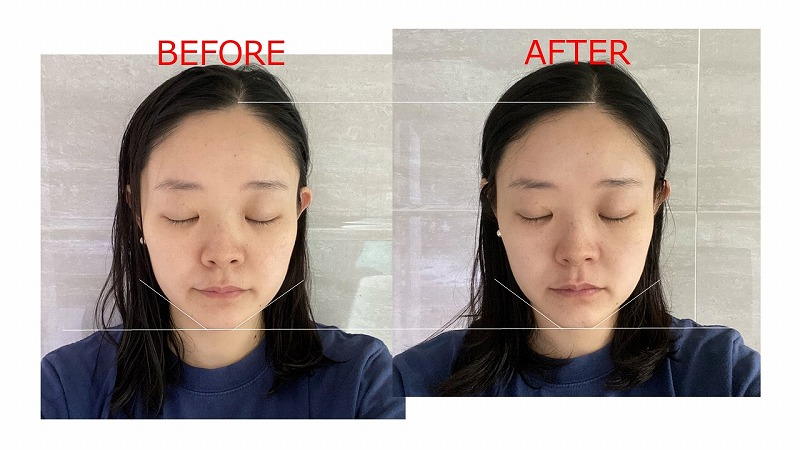 dewycel_lifting_,mask_review_before_after