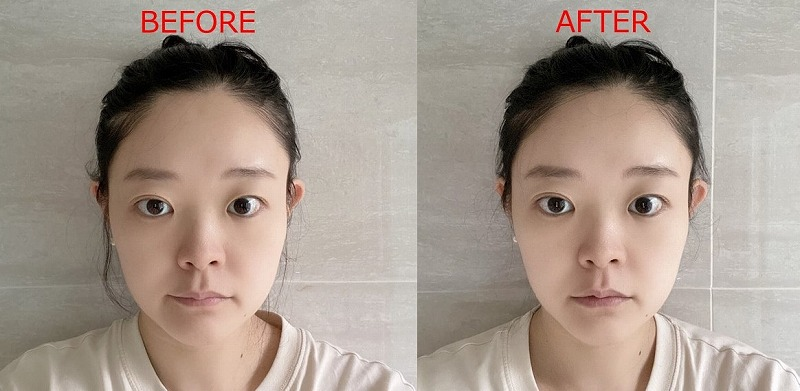 dewycel_lifting_,mask_review_before_after_2days1