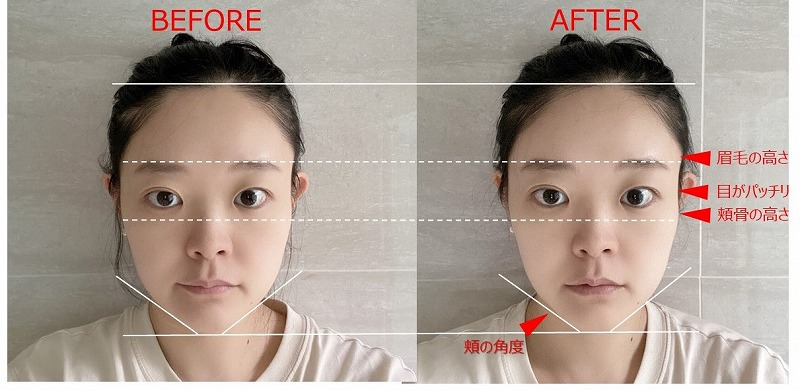 dewycel_lifting_,mask_review_before_after_2days2